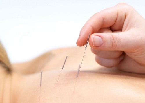 acupuncturepic